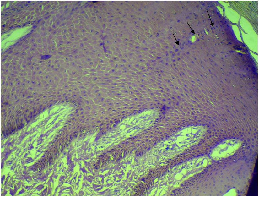 Epidermis of skin of buffalo. Note the direction of one excretory duct of the sweat gland toward the surface of the skin (arrows). H& E stain.X40.