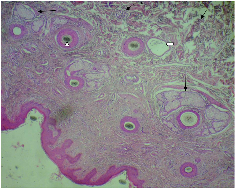 Skin of buffaloes. Note the small deep acini of sweat glands (short black arrows), their ducts (white arrow), the abundant melanocytes (white arrow head) and the lobulated sebaceous glands (Long black arrow). H & E stain. X 100.