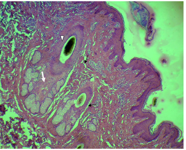 Skin of buffaloe. Note the distribution of simple sweat glands (black arrows) and sebaceous glands (white arrow).The dark spot (white arrow head) refers to the melanocyte within the hair follicle. H & E stain. x200.